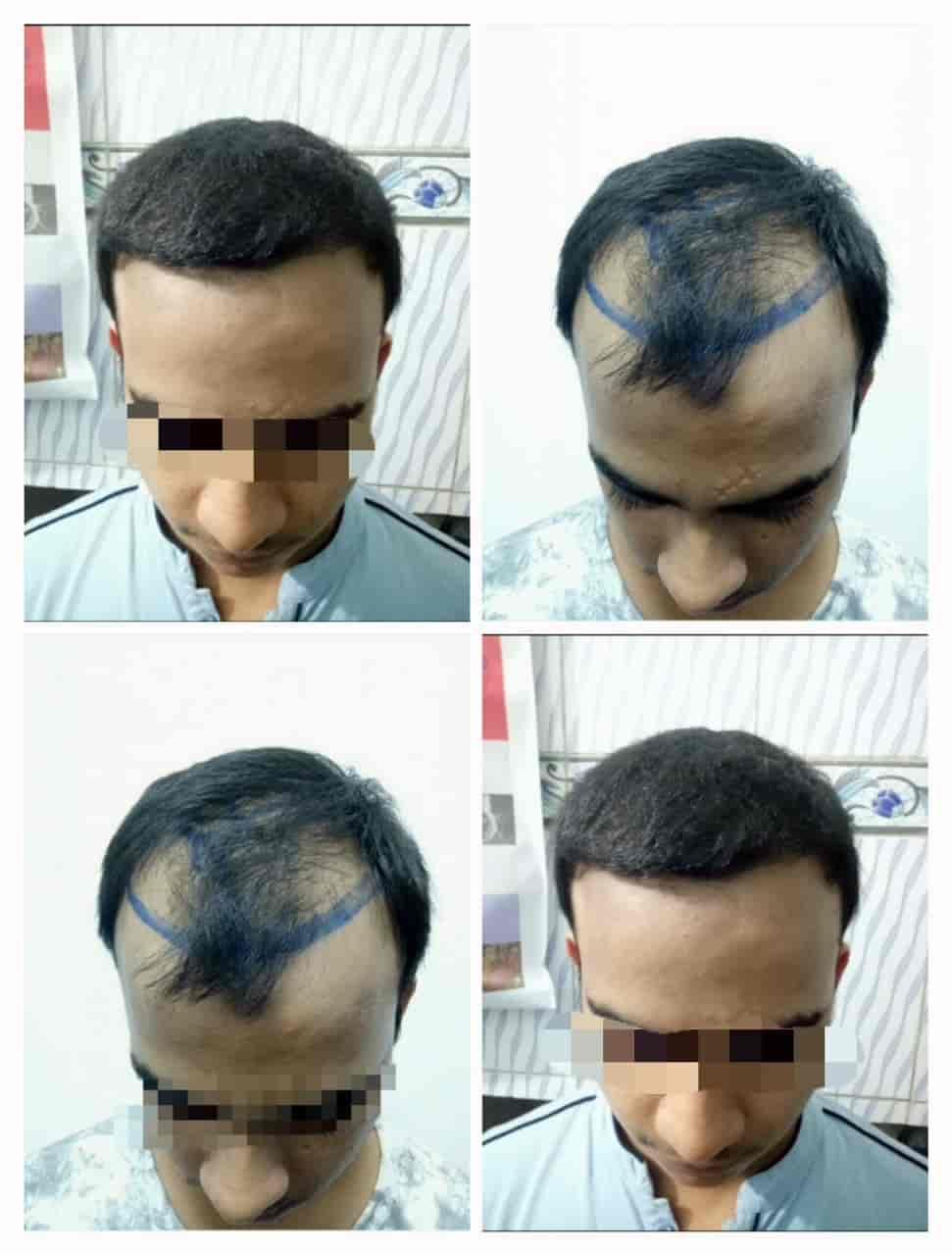 Top Hair Transplant Doctors in Abulane, Meerut - Best Hair