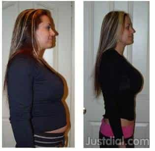 Medical Center Weight Loss Near Babcock Rd Dorothy Louise Dr Tx
